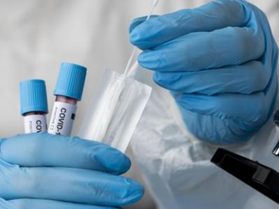 La 4 teste RT-PCR COVID-19, al 5-lea este gratuit (pe același nume)